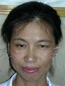 Anwendung der Akupunktur